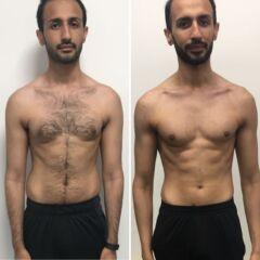 Assim Transformation